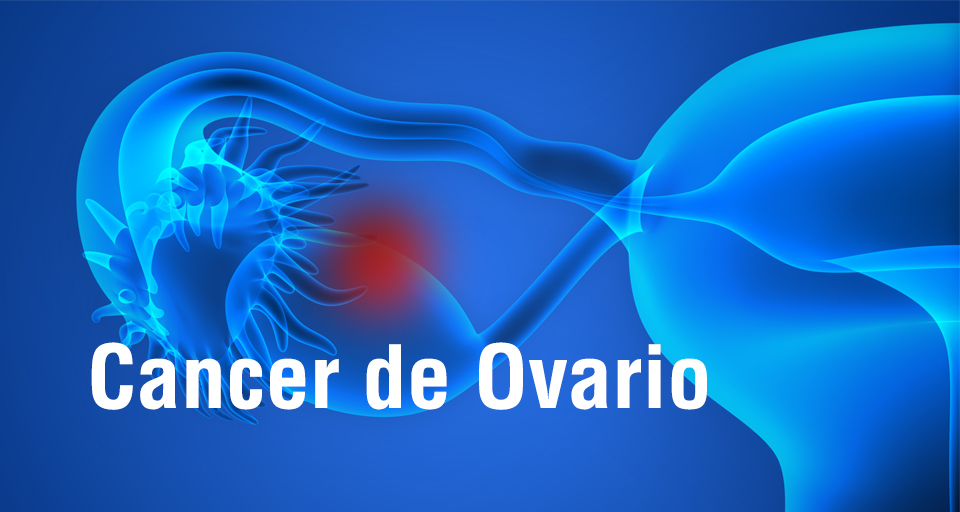 Cancer_ovario